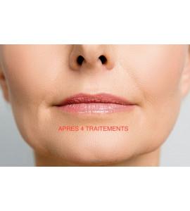 Micro-pigmentation de la tête ou de la queue du sourcil (30min)